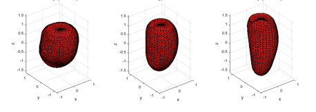 Figure 4. Statistical shape modelling of the left ventricle to guide in the segmentation.